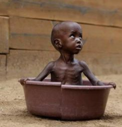 starving-african-baby-in-tub